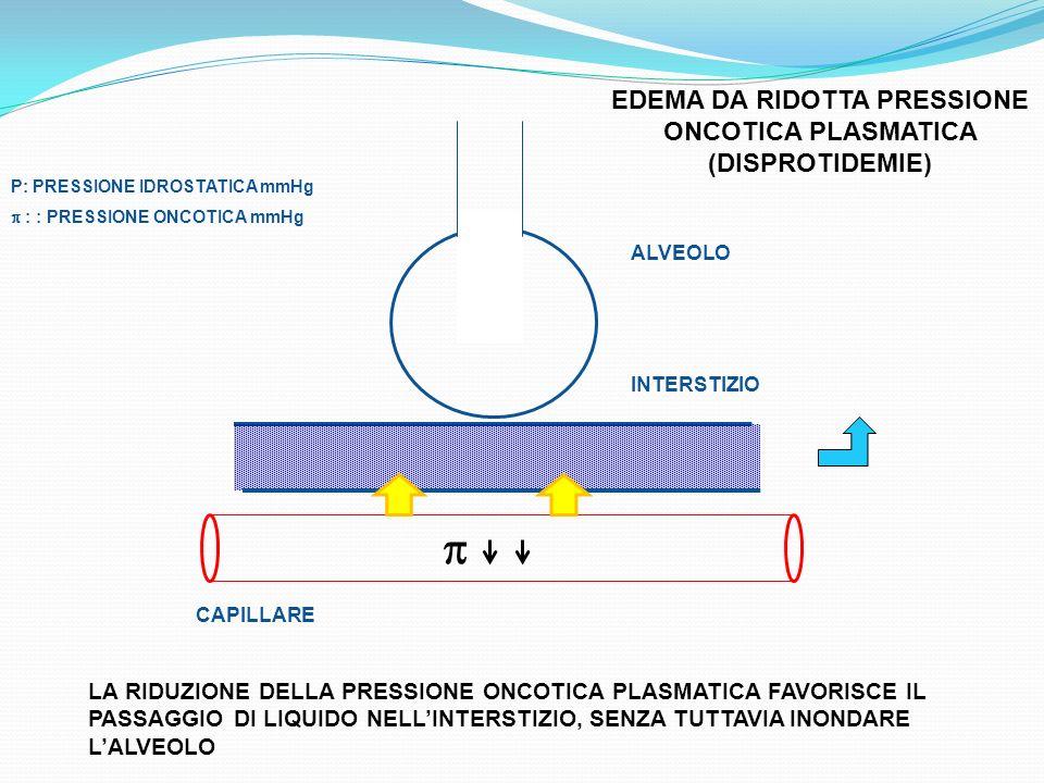 EDEMA DA RIDOTTA PRESSIONE ONCOTICA PLASMATICA (DISPROTIDEMIE)