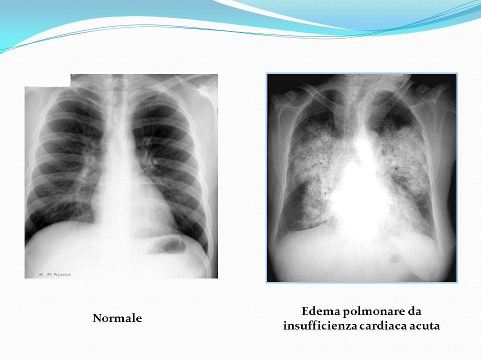 Edema polmonare da insufficienza cardiaca acuta