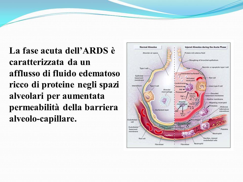 La fase acuta dell'ARDS è caratterizzata da un afflusso di fluido edematoso ricco di proteine negli spazi alveolari per aumentata permeabilità della barriera alveolo-capillare.