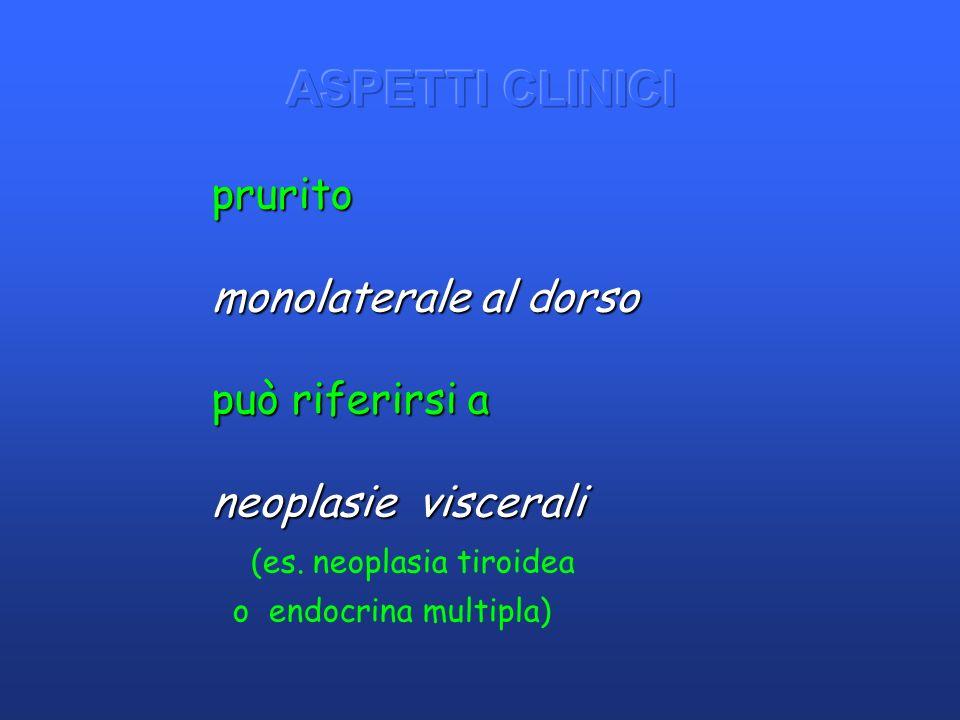 ASPETTI CLINICI prurito monolaterale al dorso può riferirsi a