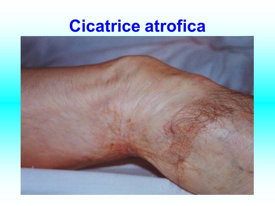 Cicatrice atrofica