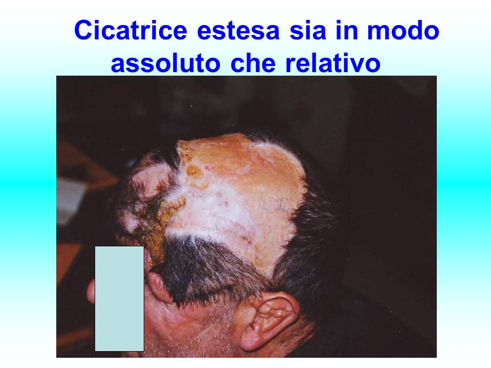 Cicatrice estesa sia in modo assoluto che relativo