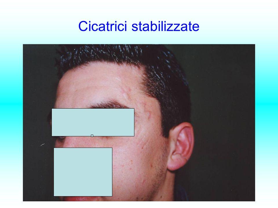 Cicatrici stabilizzate