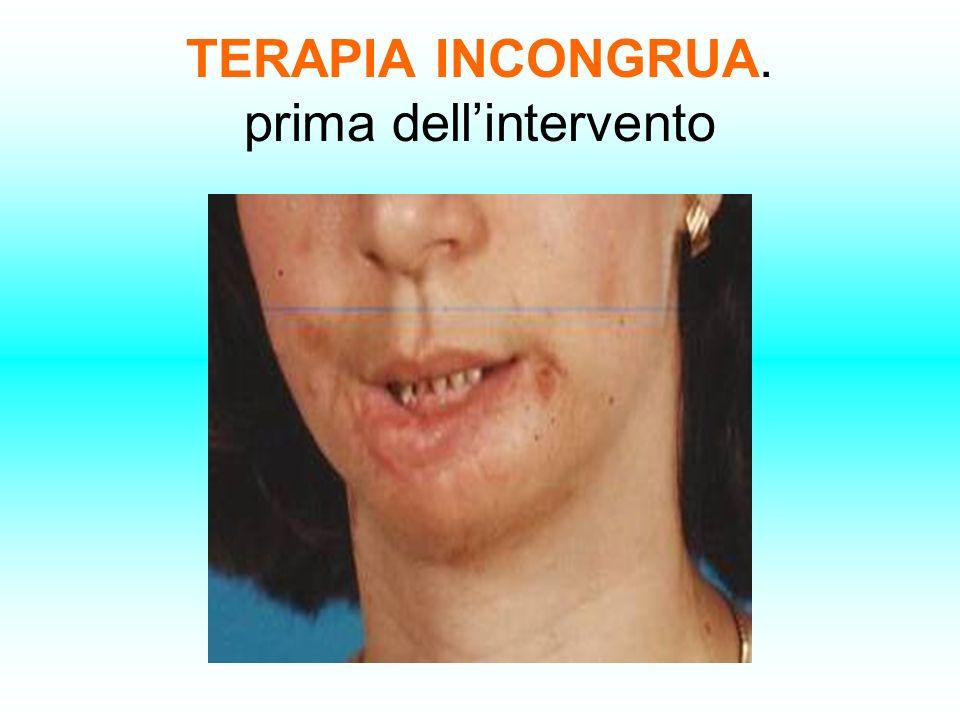 TERAPIA INCONGRUA. prima dell'intervento