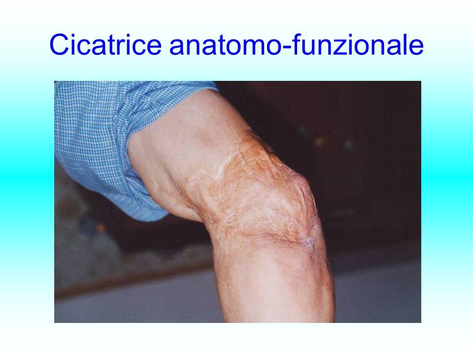 Cicatrice anatomo-funzionale