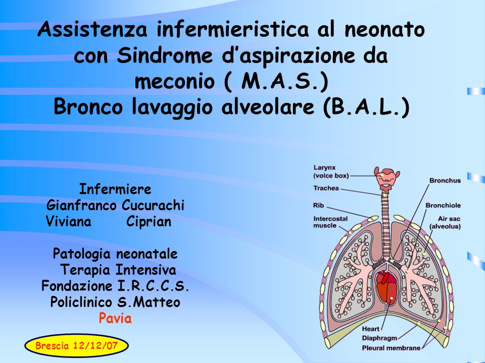 Assistenza infermieristica al neonato con Sindrome d'aspirazione da meconio ( M.A.S.) Bronco lavaggio alveolare (B.A.L.)