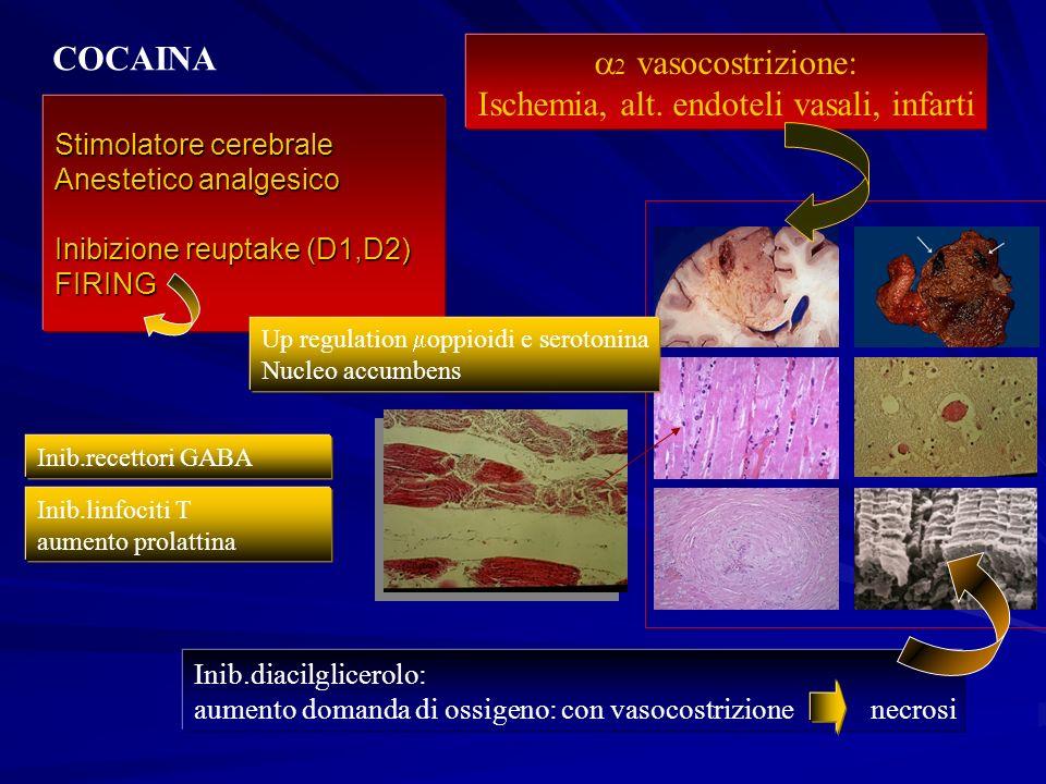 Ischemia, alt. endoteli vasali, infarti