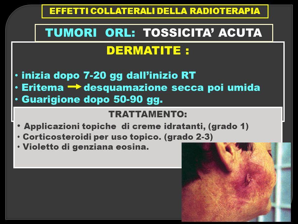 EFFETTI COLLATERALI DELLA RADIOTERAPIA TUMORI ORL: TOSSICITA' ACUTA