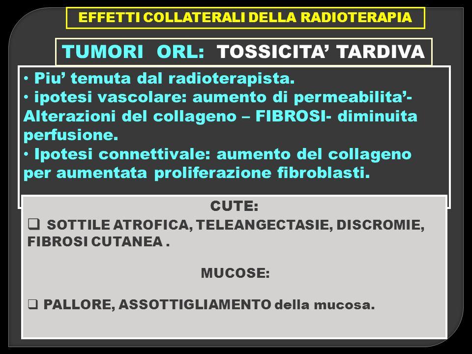EFFETTI COLLATERALI DELLA RADIOTERAPIA TUMORI ORL: TOSSICITA' TARDIVA