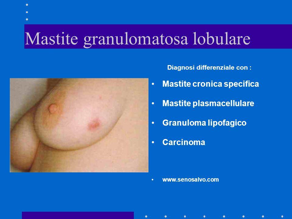 Mastite granulomatosa lobulare