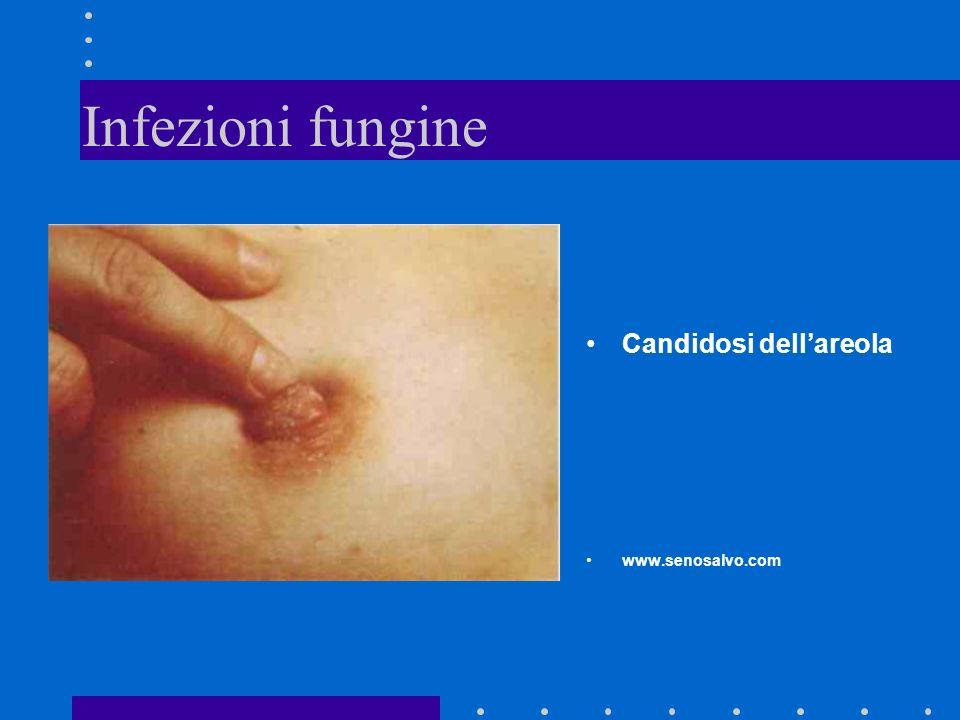 Infezioni fungine Candidosi dell'areola www.senosalvo.com