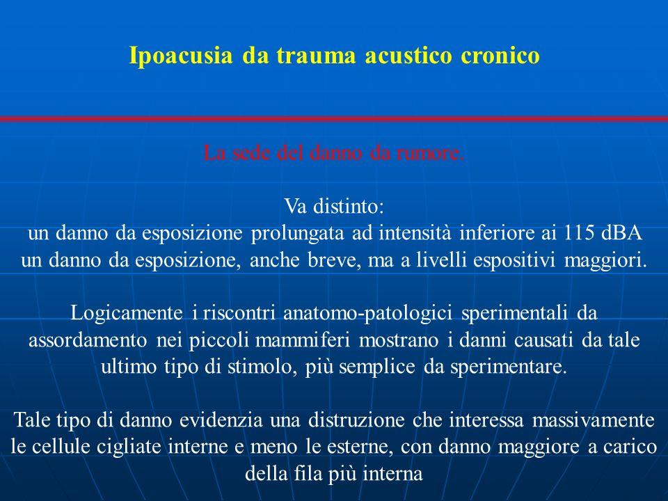 Ipoacusia da trauma acustico cronico