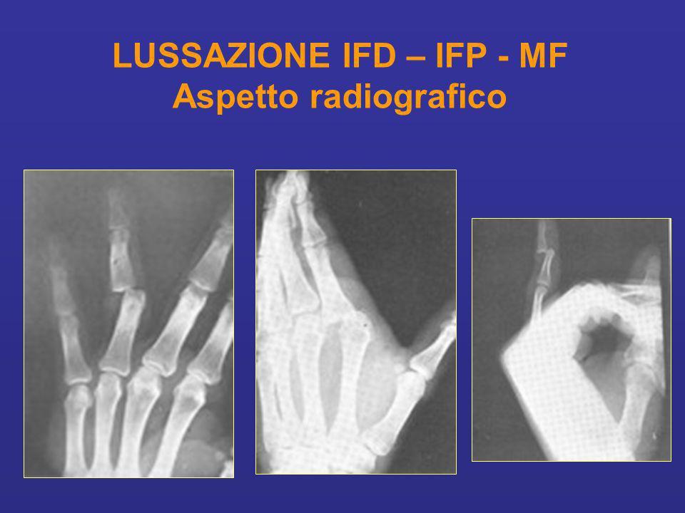 LUSSAZIONE IFD – IFP - MF