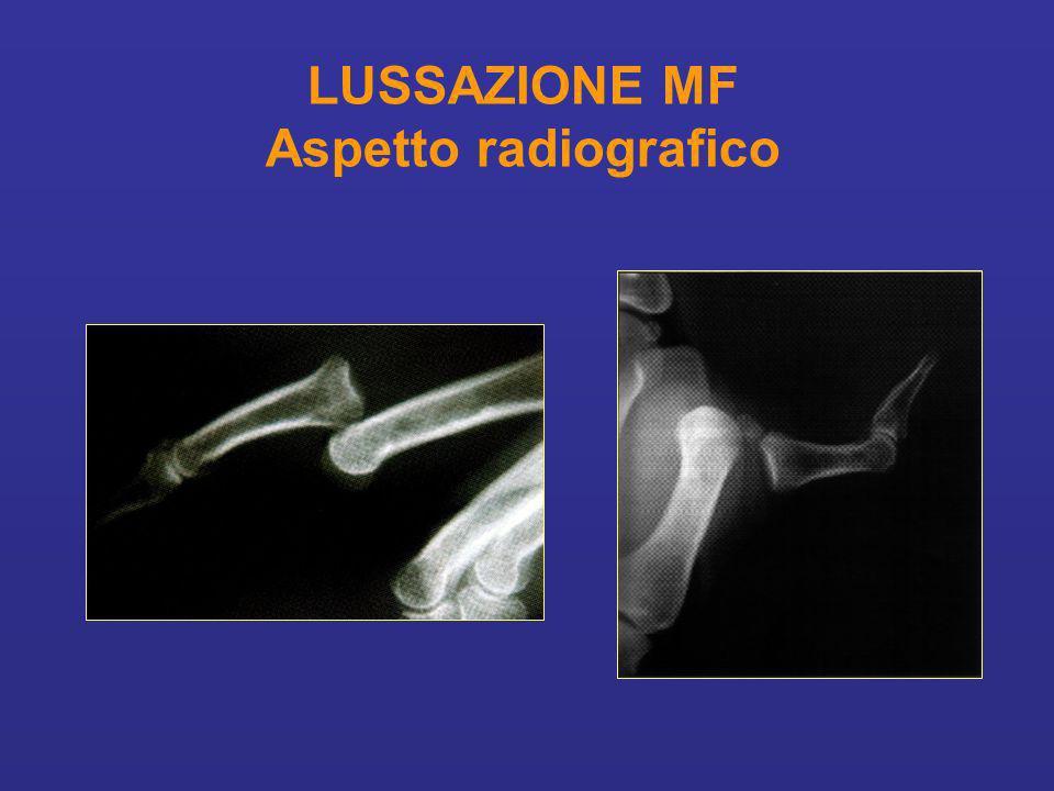 LUSSAZIONE MF Aspetto radiografico