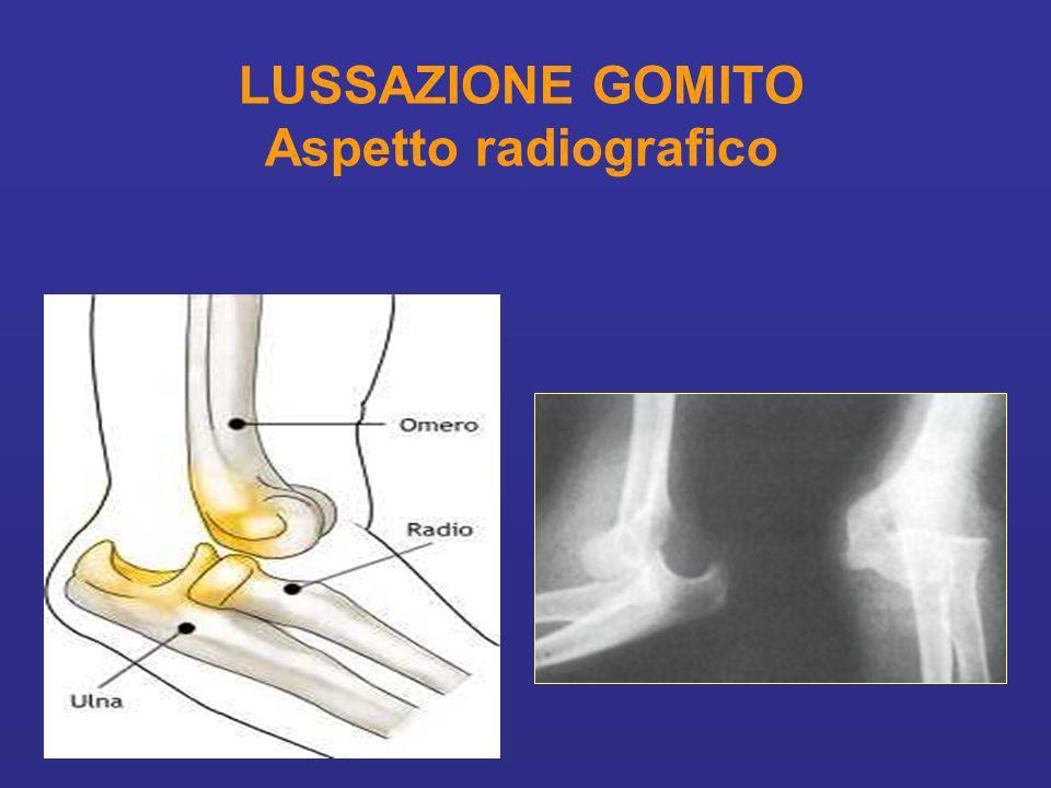 LUSSAZIONE GOMITO Aspetto radiografico