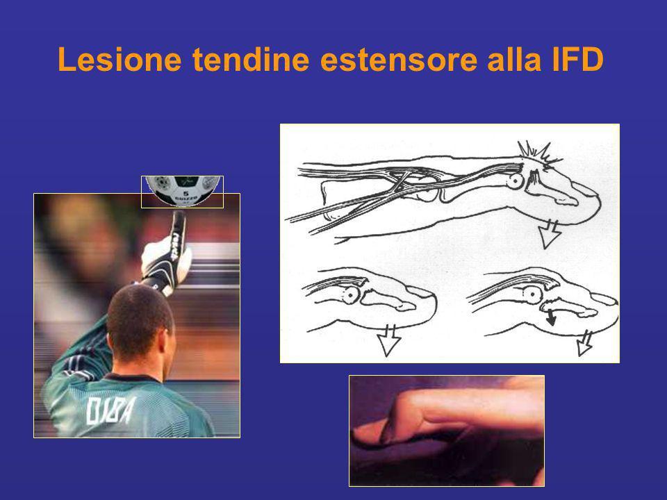 Lesione tendine estensore alla IFD