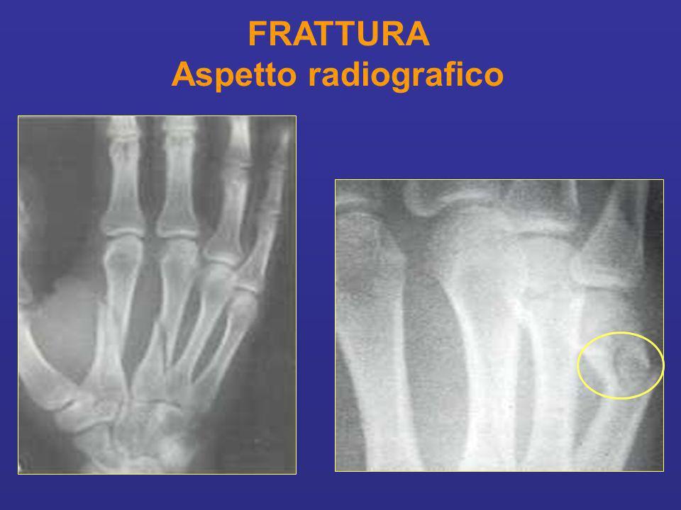 FRATTURA Aspetto radiografico