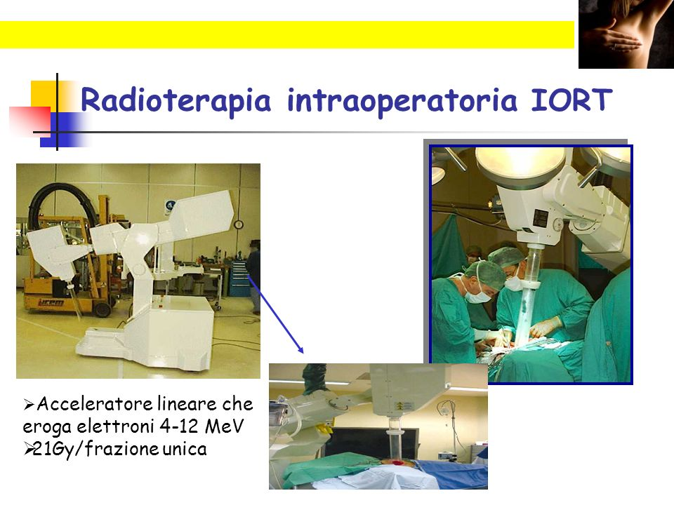 Radioterapia intraoperatoria IORT