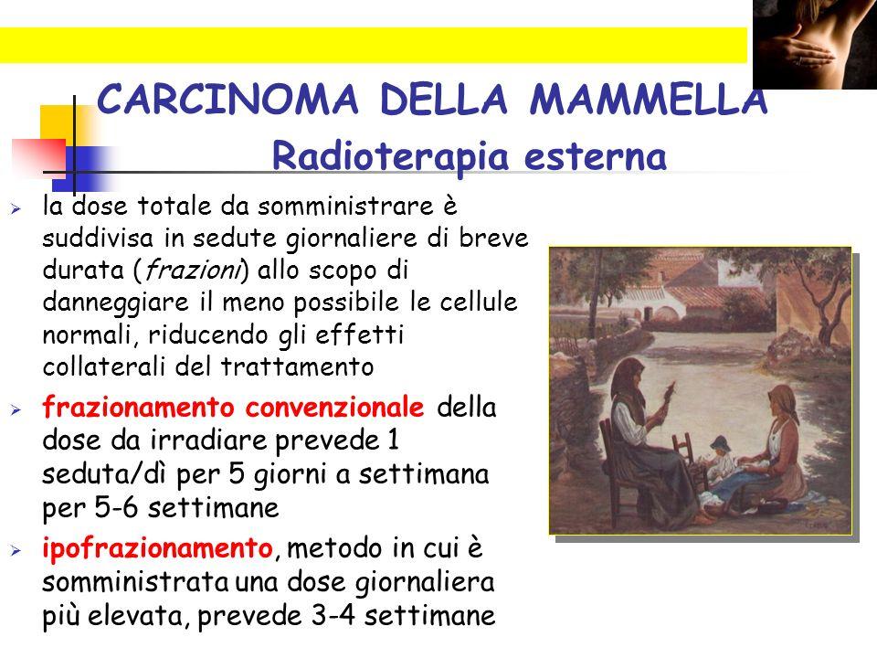 CARCINOMA DELLA MAMMELLA Radioterapia esterna