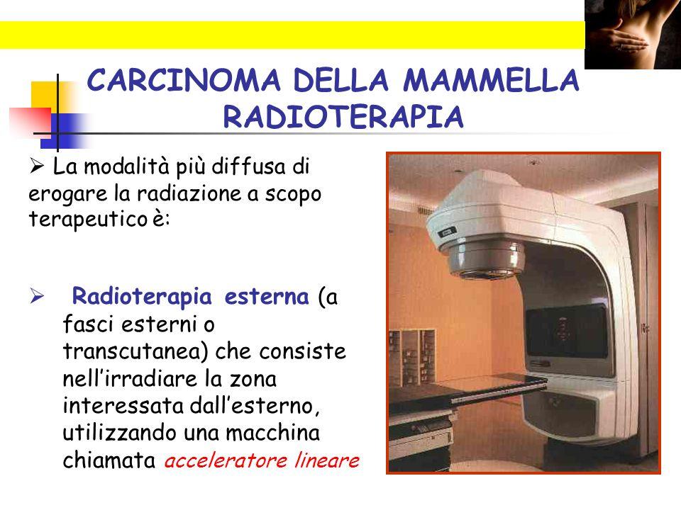 CARCINOMA DELLA MAMMELLA RADIOTERAPIA