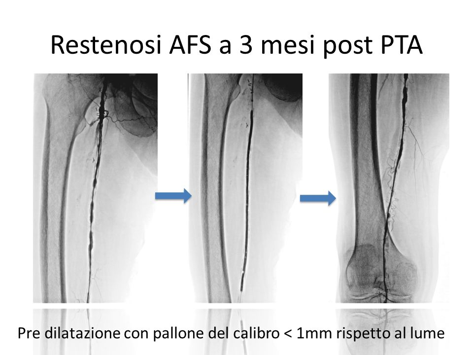 Restenosi AFS a 3 mesi post PTA