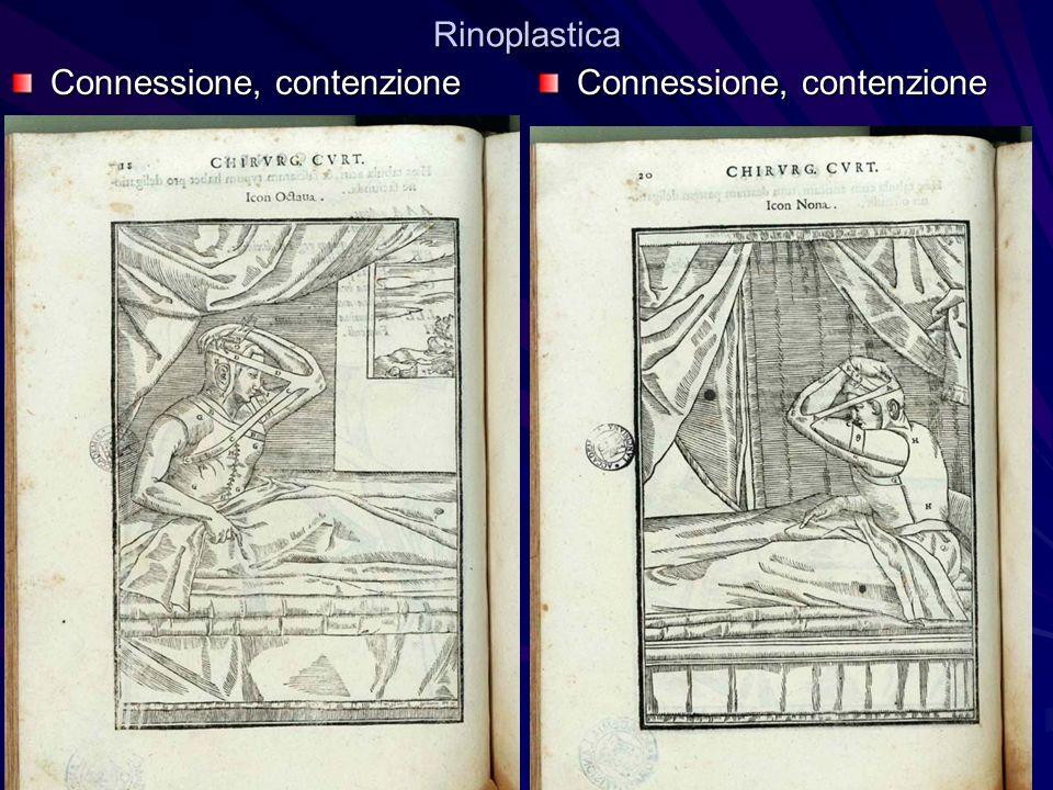 Rinoplastica Connessione, contenzione Connessione, contenzione