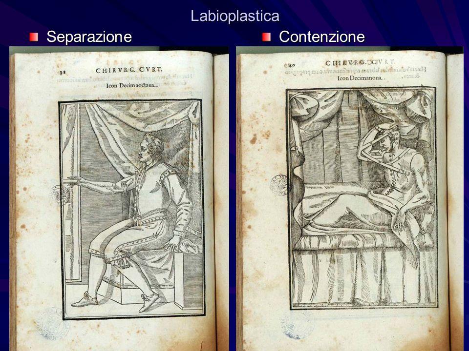 Labioplastica Separazione Contenzione