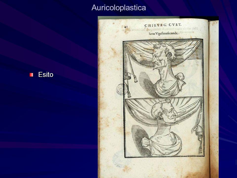 Auricoloplastica Esito