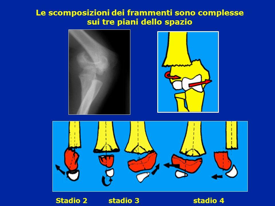 Le scomposizioni dei frammenti sono complesse sui tre piani dello spazio