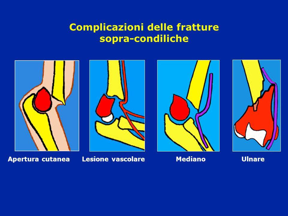 Complicazioni delle fratture sopra-condiliche