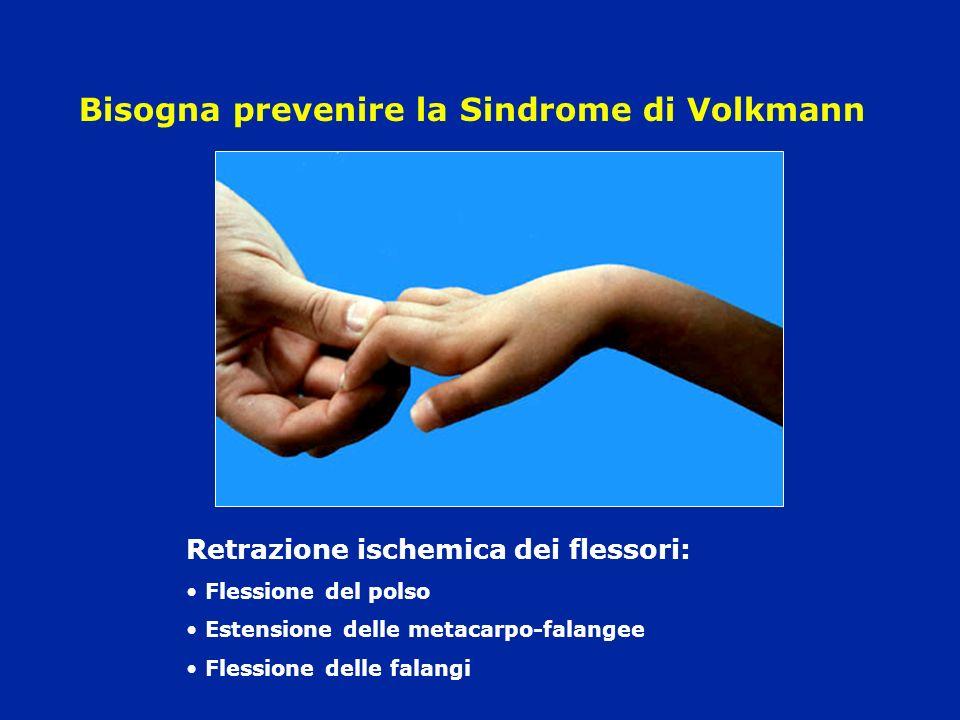 Bisogna prevenire la Sindrome di Volkmann