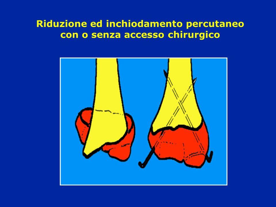 Riduzione ed inchiodamento percutaneo con o senza accesso chirurgico