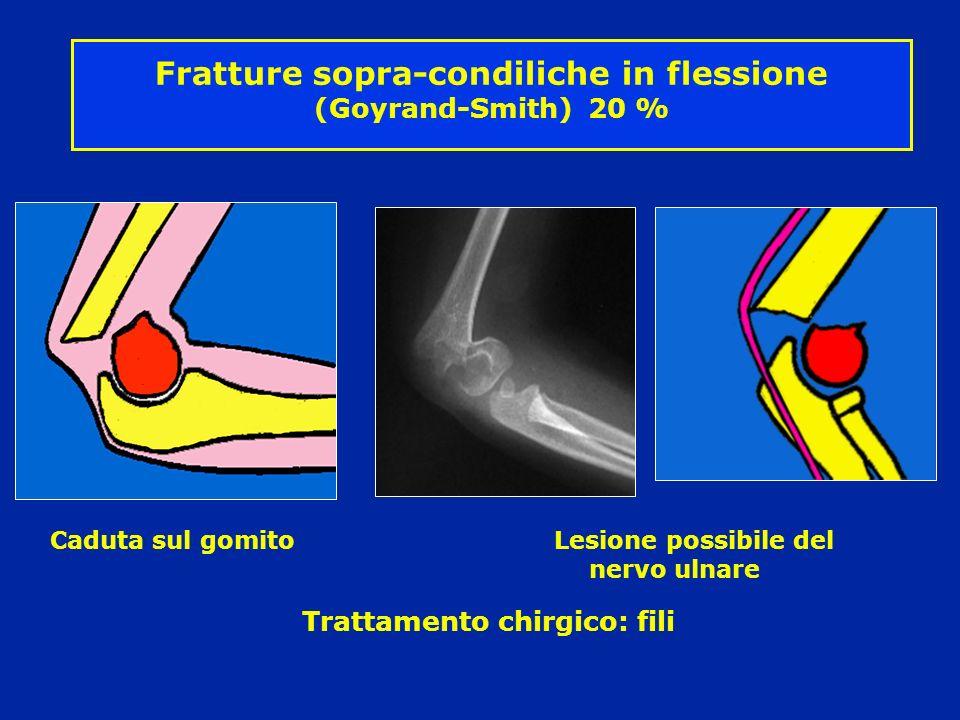 Fratture sopra-condiliche in flessione (Goyrand-Smith) 20 %