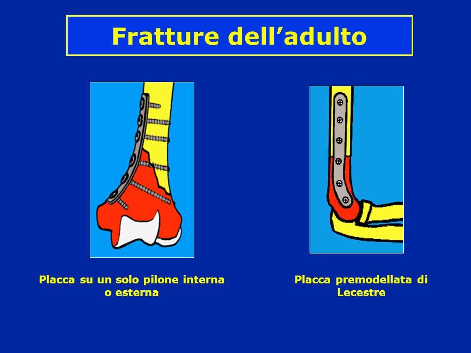 Fratture dell'adulto Placca su un solo pilone interna o esterna