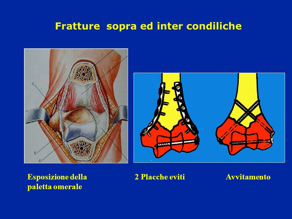 Fratture sopra ed inter condiliche