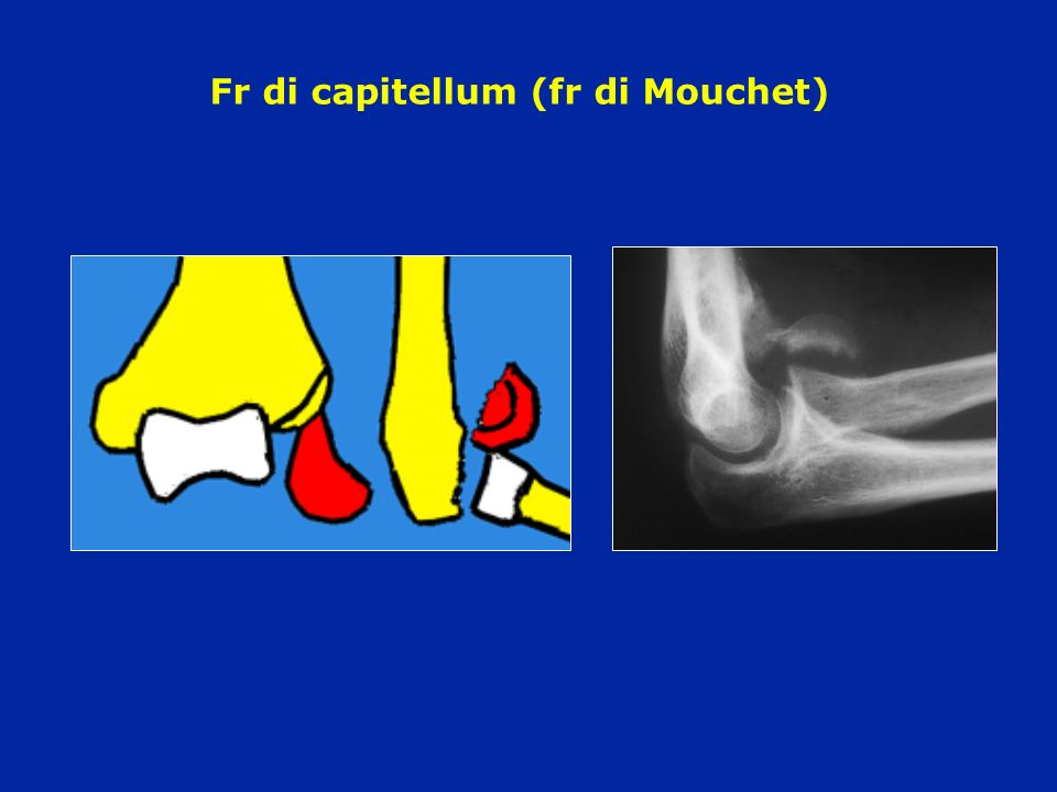 Fr di capitellum (fr di Mouchet)