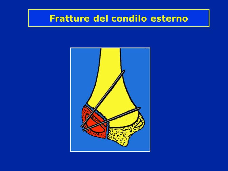 Fratture del condilo esterno