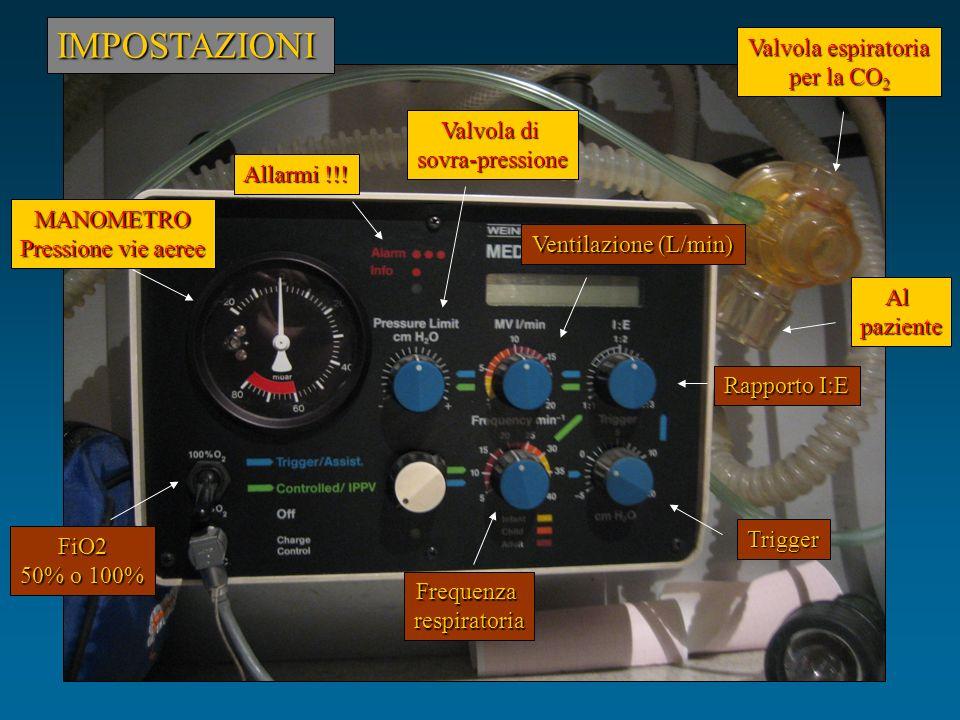 IMPOSTAZIONI Valvola espiratoria per la CO2 Valvola di sovra-pressione