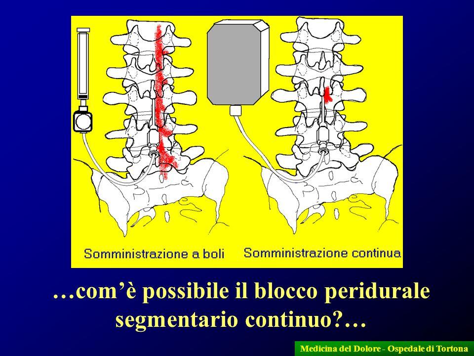 …com'è possibile il blocco peridurale segmentario continuo …