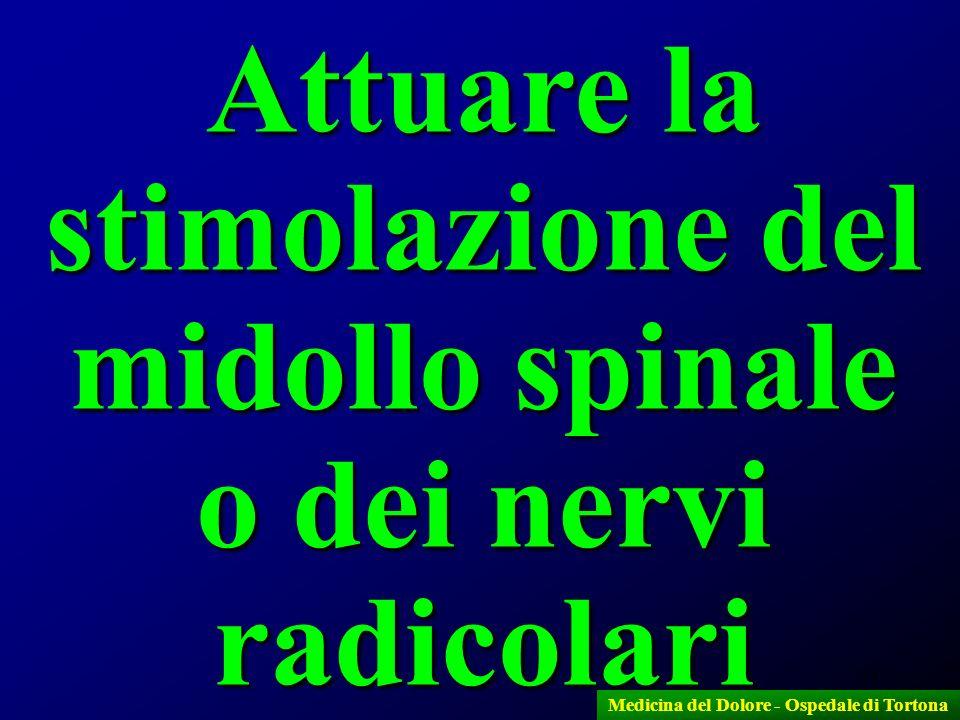 Attuare la stimolazione del midollo spinale o dei nervi radicolari