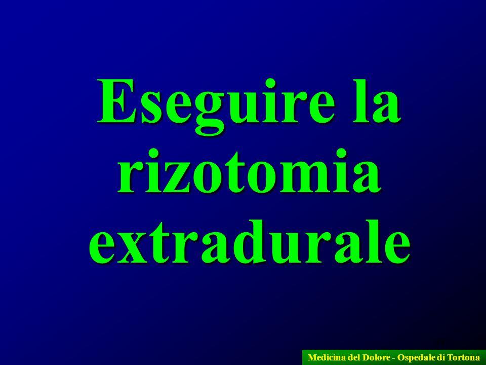 Eseguire la rizotomia extradurale