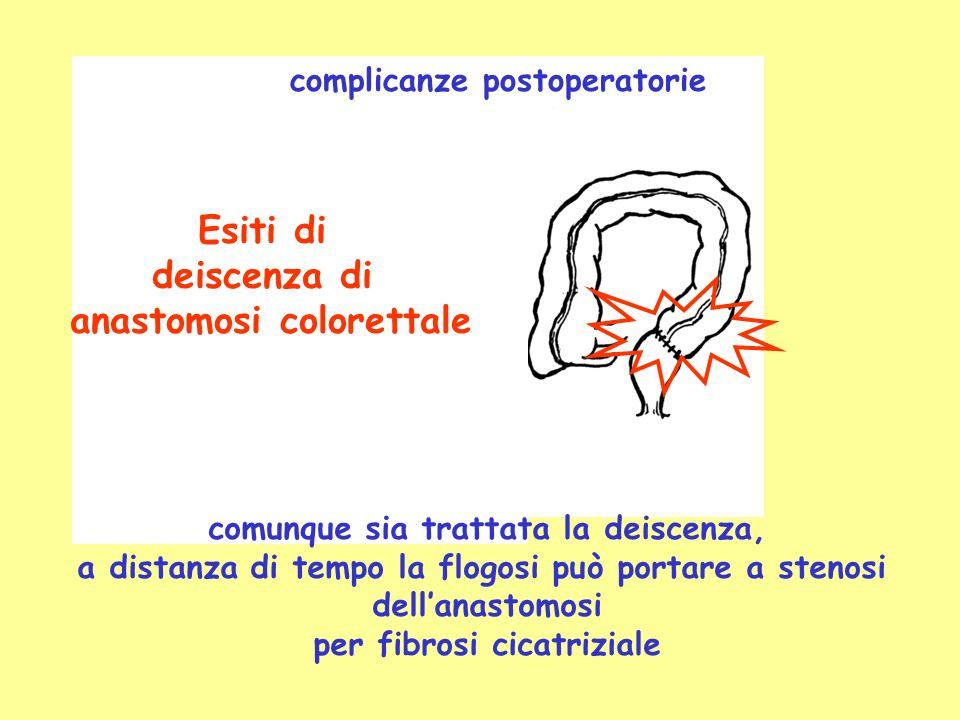 anastomosi colorettale