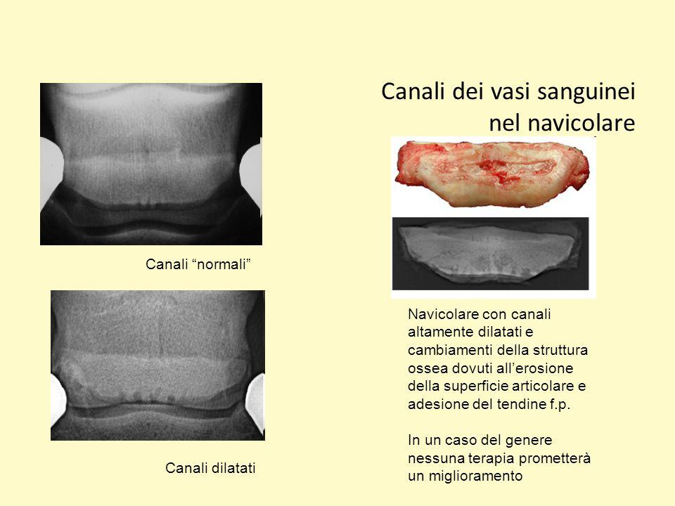 Canali dei vasi sanguinei nel navicolare