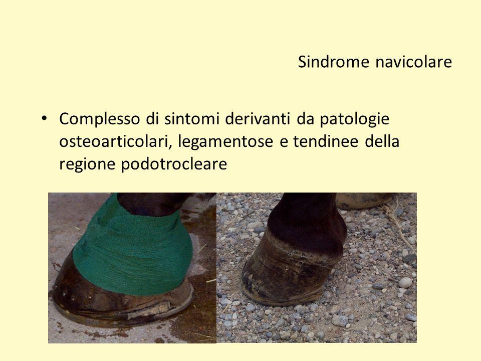 Sindrome navicolare Complesso di sintomi derivanti da patologie osteoarticolari, legamentose e tendinee della regione podotrocleare.