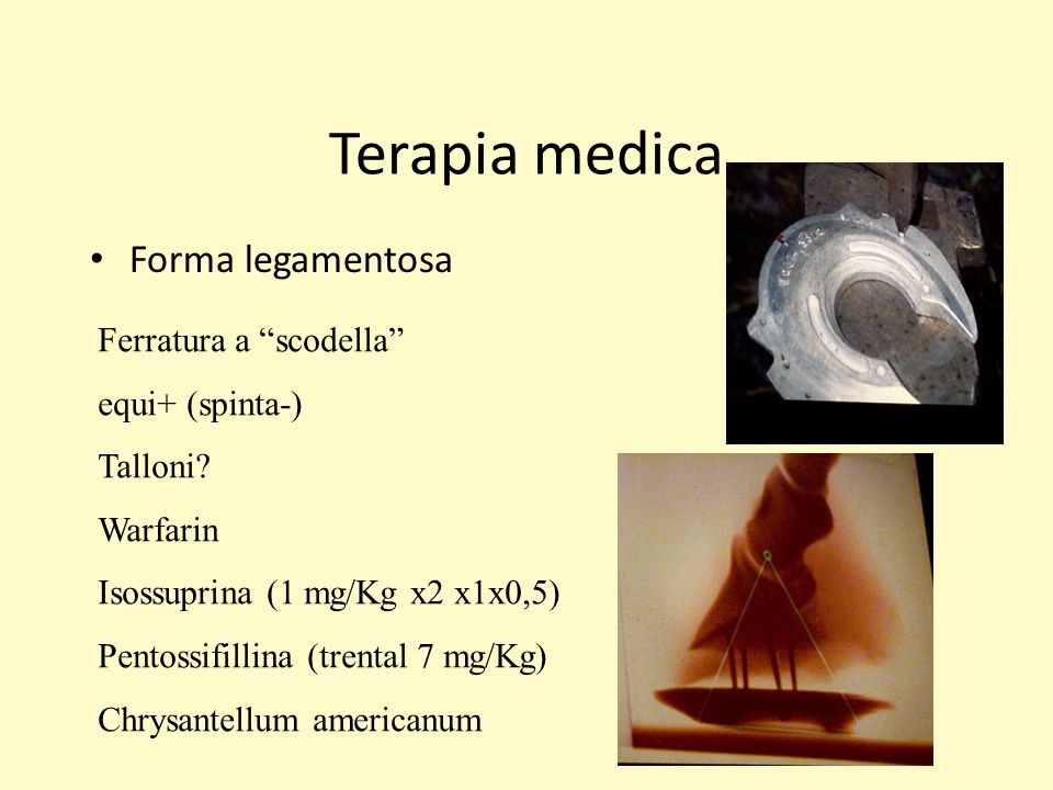 Terapia medica Forma legamentosa Ferratura a scodella