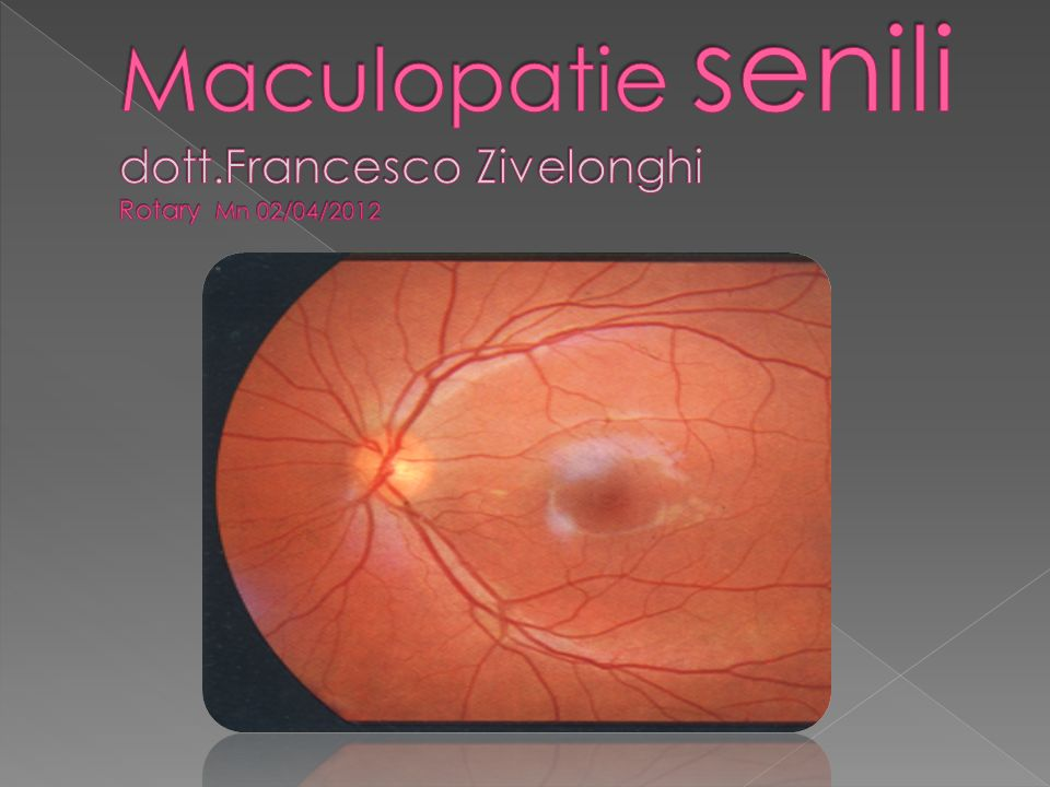 Maculopatie senili dott.Francesco Zivelonghi Rotary Mn 02/04/2012