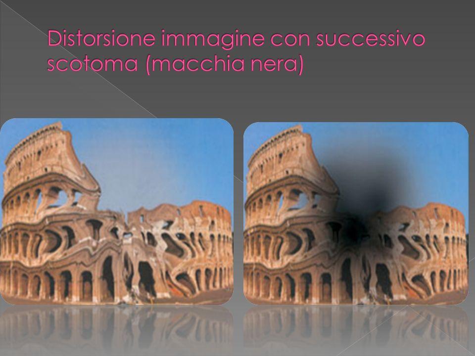 Distorsione immagine con successivo scotoma (macchia nera)