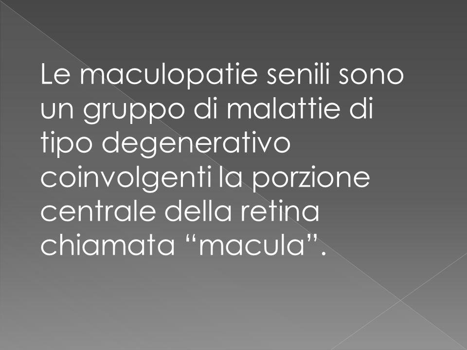 Le maculopatie senili sono un gruppo di malattie di tipo degenerativo coinvolgenti la porzione centrale della retina chiamata macula .