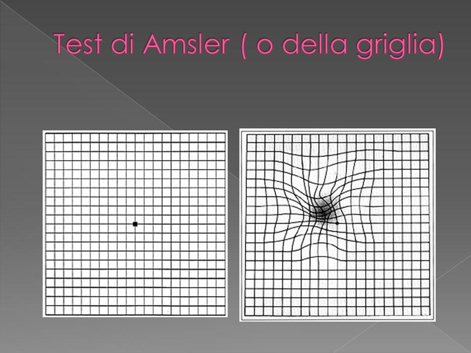Test di Amsler ( o della griglia)