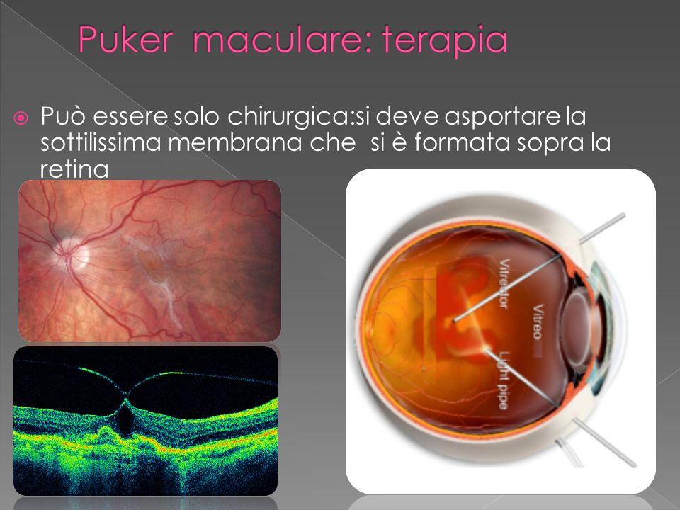 Puker maculare: terapia